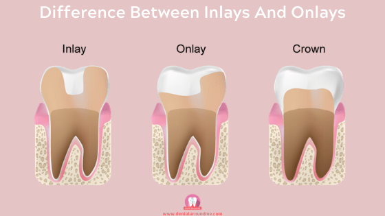 difference between Dental Inlays And Onlays