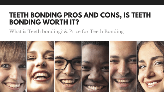 teeth bonding pros and cons - price for teeth bonding