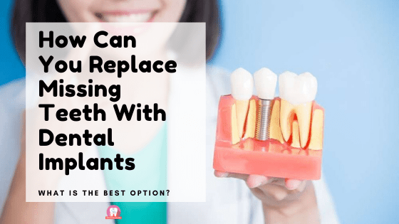 Can You Replace Missing Teeth With Dental Implants