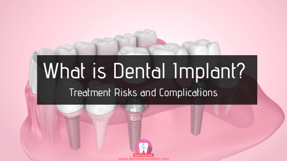 What is Dental Implant_-min