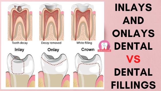 Inlays and Onlays Dental