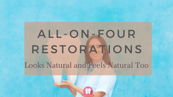 All-on-four Restorations
