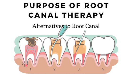 Purpose of Root Canal Therapy