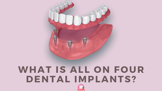 what is all on four dental implants