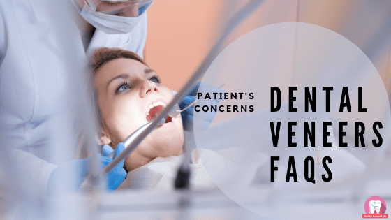 Dental Veneers FAQs