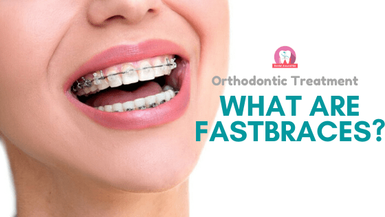 What Are Fastbraces?