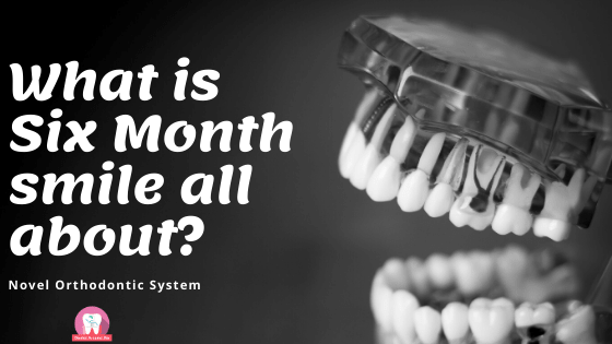 What is Six Month smile all about?