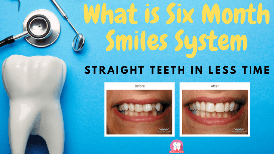 What is Six Month Smiles System