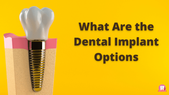 What Are the Dental Implant Options