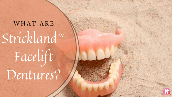Strickland™ Facelift Dentures