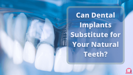 Can Dental Implants Substitute for Your Natural Teeth?