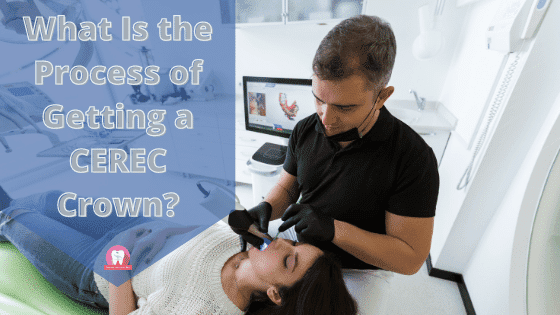 What Is the Process of Getting a CEREC Crown